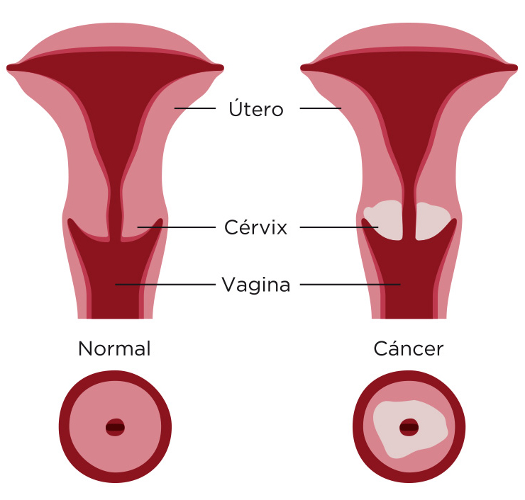 cancer-cervix